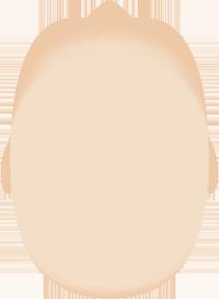 Cabeza bebé con escafocefalia